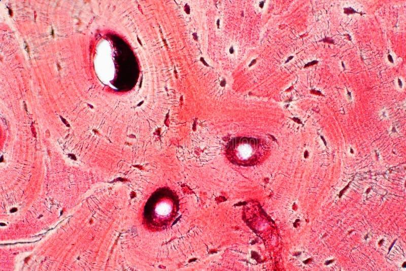 Histologia do tecido compacto humano do osso sob a opinião do microscópio para imagem de stock royalty free