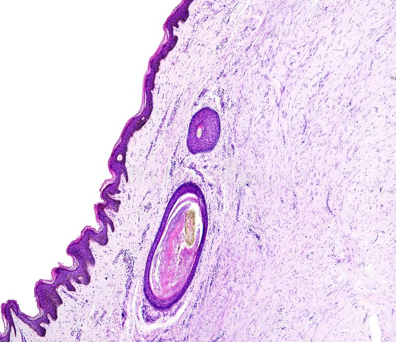 Histology of human tissue, show skin with hair follicles as seen under the microscope. stock images