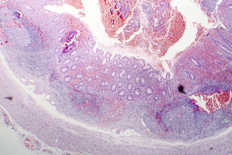 Histopathologie van chronische blindedarmontsteking stock afbeeldingen