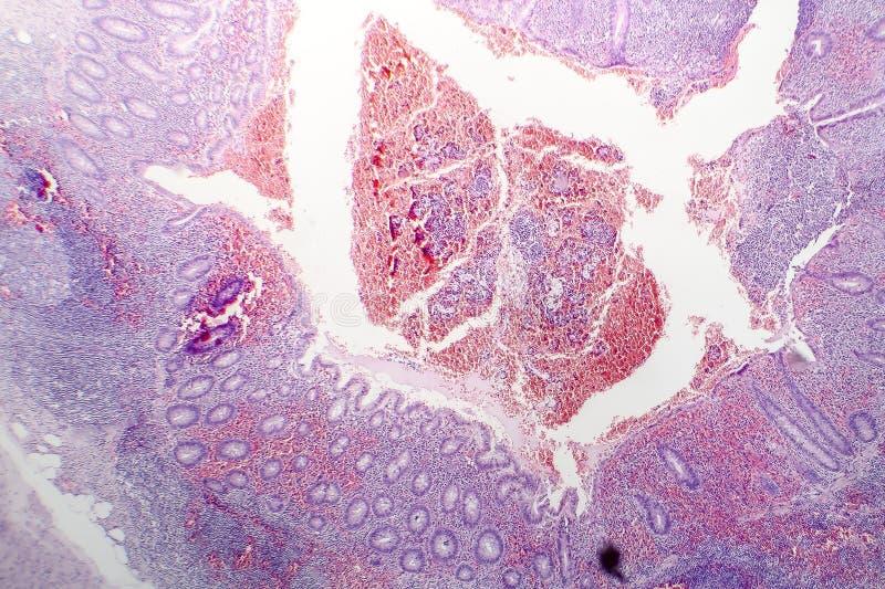 Histopathologie van chronische blindedarmontsteking royalty-vrije stock afbeelding
