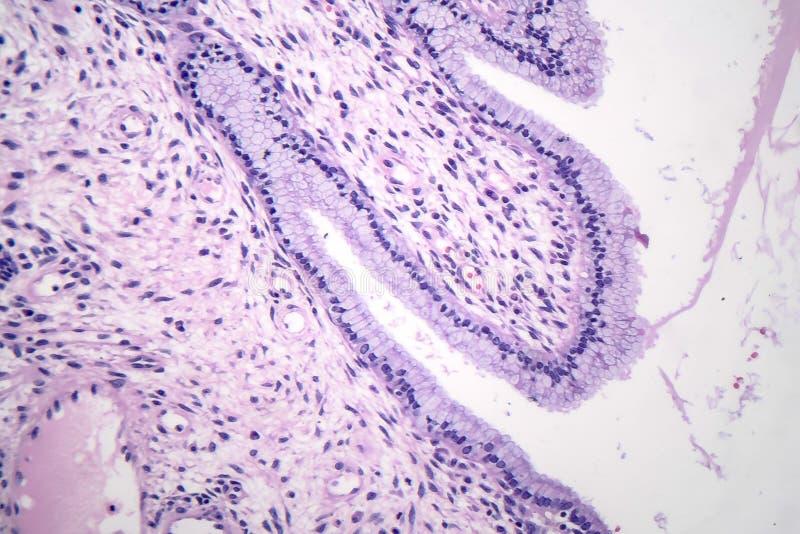 Histopathology av nasala polyper royaltyfri fotografi