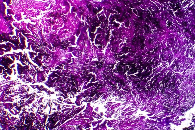 Histopathology av silikons, ljus micrograph arkivbild
