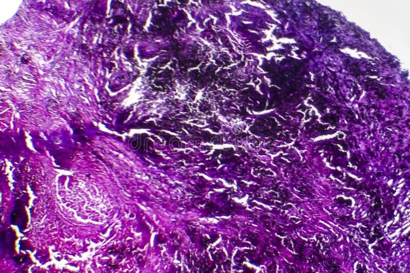 Histopathology av silikons, ljus micrograph royaltyfri bild