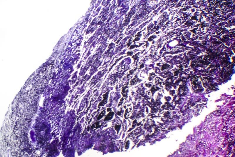 Histopathology av silikons, ljus micrograph royaltyfri foto
