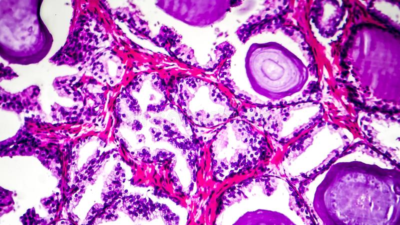Histopathology of prostate gland hyperplasia. Light micrograph, photo under microscope royalty free stock image