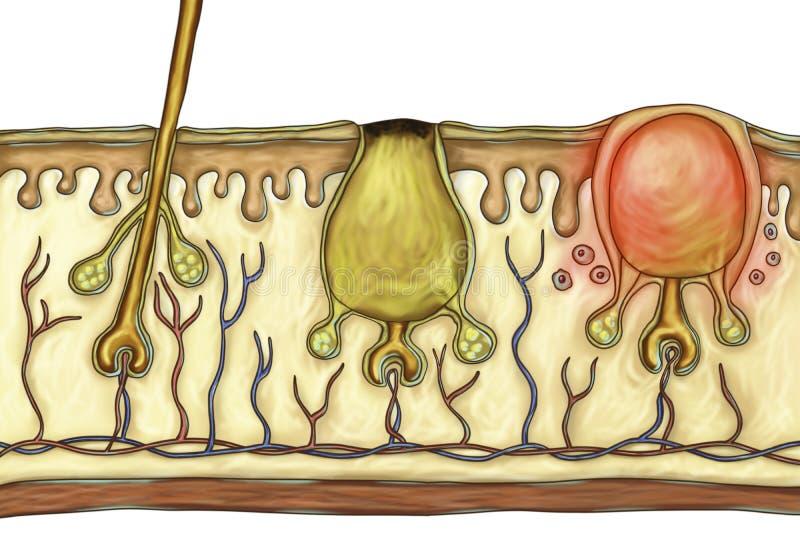 Histopathology von Akneverletzungen vektor abbildung