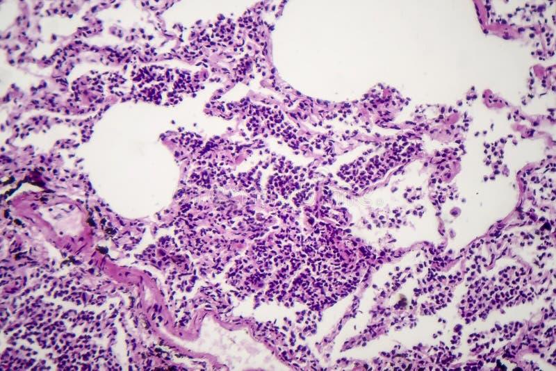 Histopatología de la pulmonía intersticial fotos de archivo