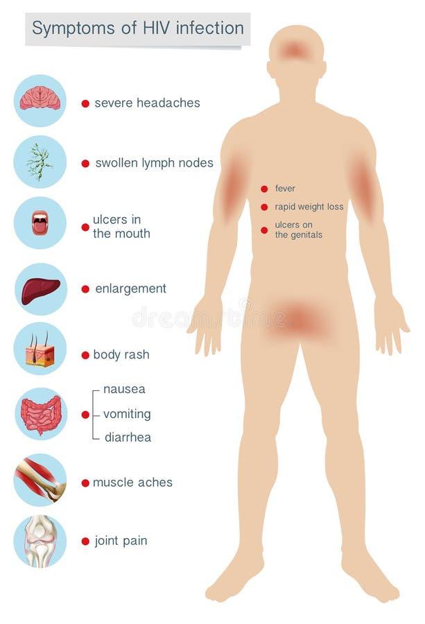 HIV感染症的人的解剖学症状 库存例证