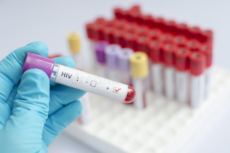 HIV blood sample. Blood sample with HIV positive royalty free stock photos