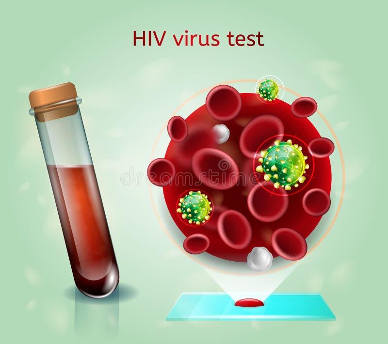 HIV het Realistische Vectorconcept van het VirusBloedonderzoek stock illustratie