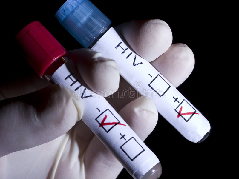 HIV-POSITIV und negativ lizenzfreie stockfotos