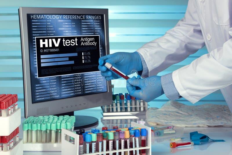 Hiv-provtekniker i undersökande blodprövkopia för labb med rapporter arkivfoto