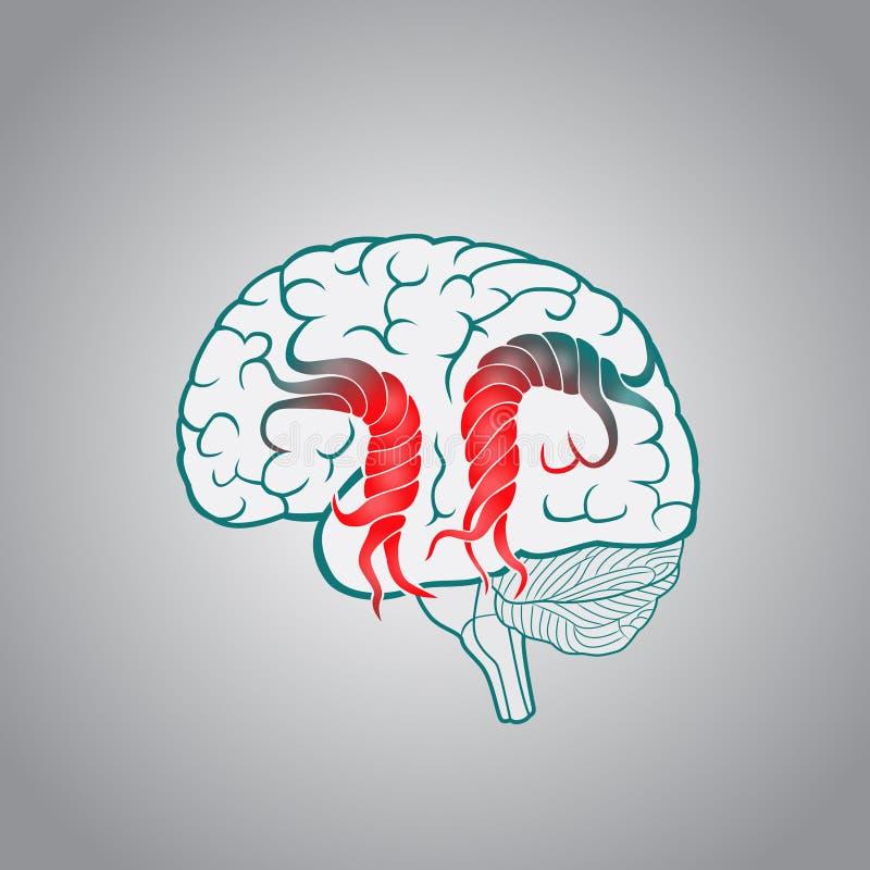 Hjärna med de vridna invecklade sakerna, av förstörelsen av hjärnan, slaglängd, minne vektor illustrationer