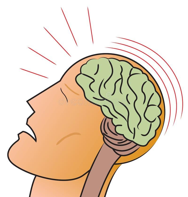 hjärnskakning stock illustrationer
