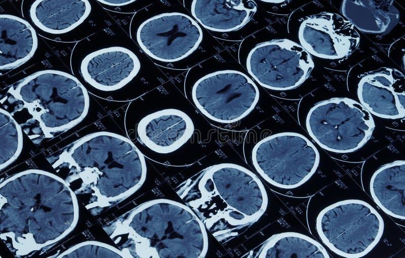 hjärnskallemri