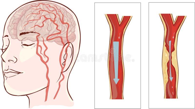 Hjärnslaglängd Cerebral infarkt stock illustrationer