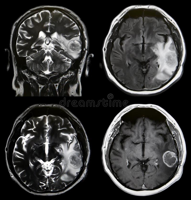 Hjärntumör MRI arkivbilder