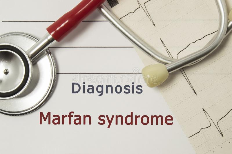 Hjärt- diagnos av den Marfan syndrommen På doktorsarbetsplats är den röda stetoskopet som skrivs ut på linje för papper ECG och e royaltyfri fotografi