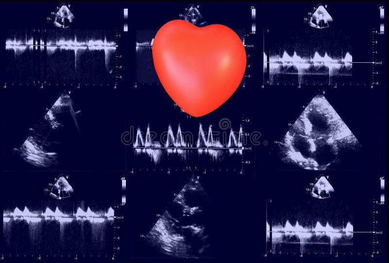Hjärt- ultraljudbilder och liten hjärta Doppler eko arkivfoto
