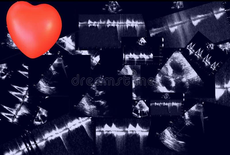 Hjärt- ultraljudbilder och liten hjärta Doppler eko royaltyfria foton