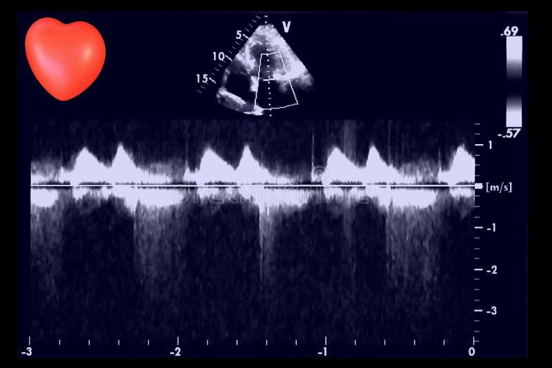 Hjärt- ultraljudbilder och liten hjärta Doppler eko royaltyfria bilder