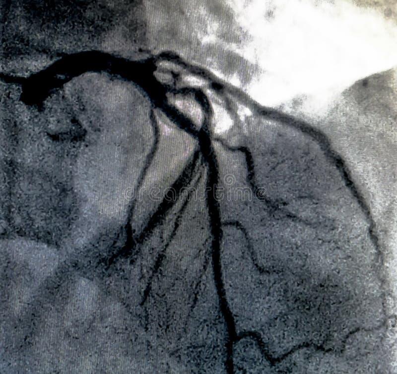 Hjärt- ventriculography Catheterization royaltyfri fotografi