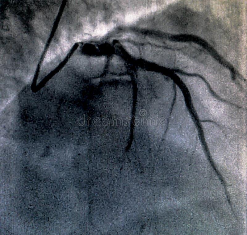 Hjärt- ventriculography Catheterization arkivfoton