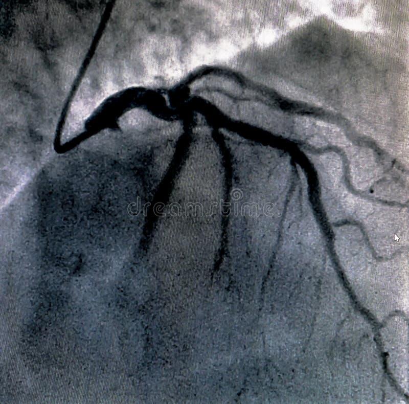 Hjärt- ventriculography Catheterization fotografering för bildbyråer