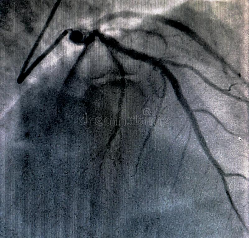 Hjärt- ventriculography Catheterization arkivbild