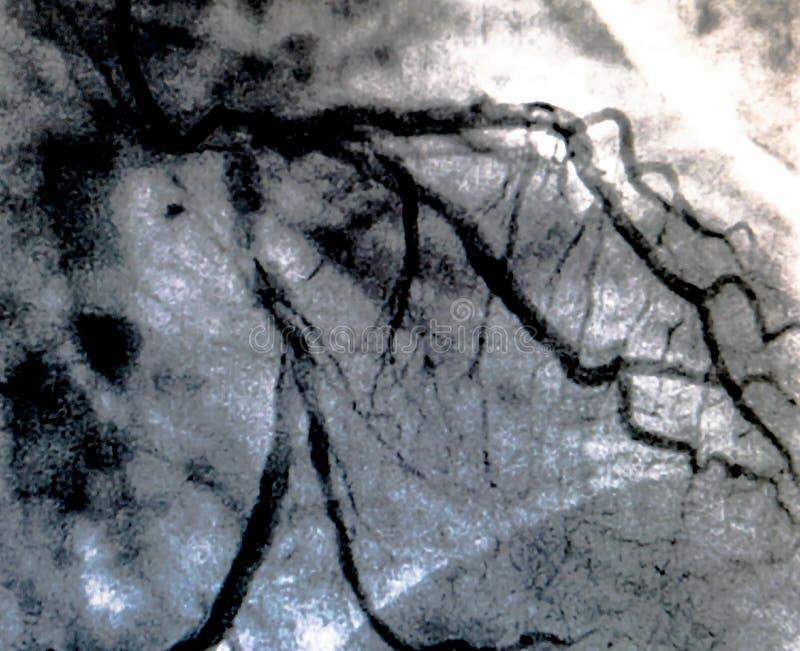 Hjärt- ventriculography Catheterization royaltyfri foto