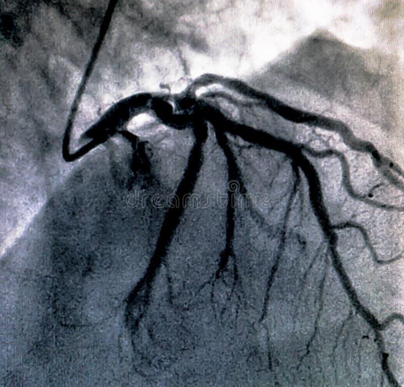 Hjärt- ventriculography Catheterization royaltyfria foton