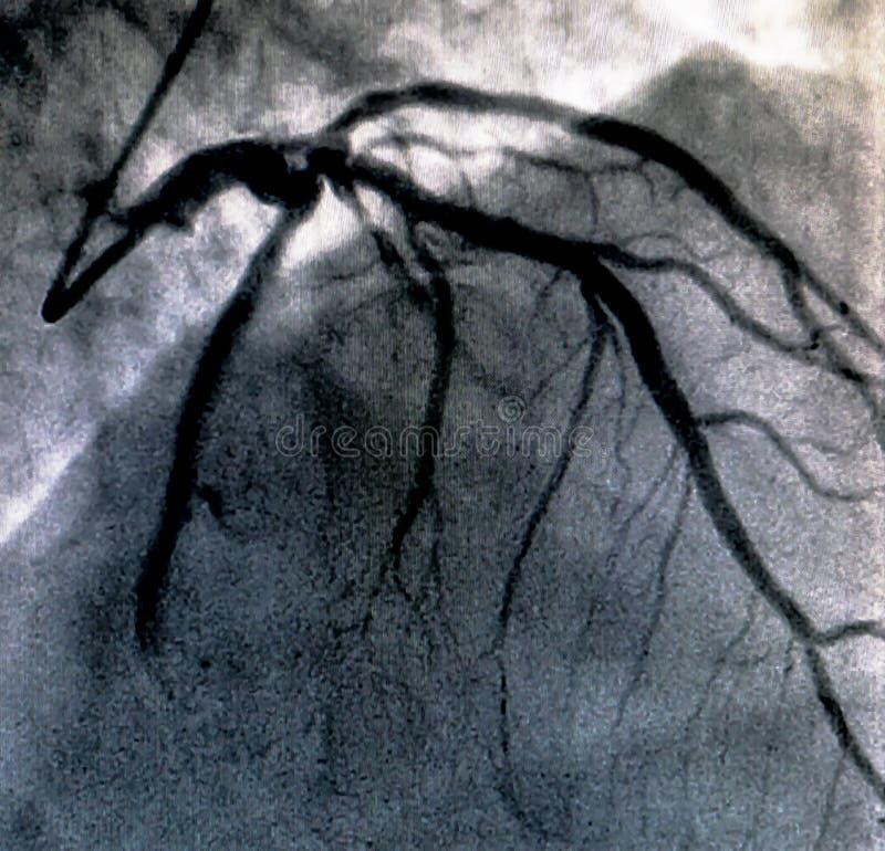 Hjärt- ventriculography Catheterization royaltyfria bilder