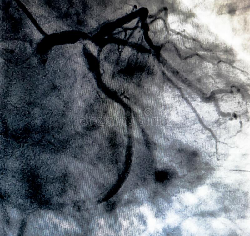 Hjärt- ventriculography Catheterization royaltyfri bild