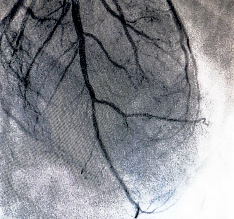Hjärt- ventriculography Catheterization arkivbilder