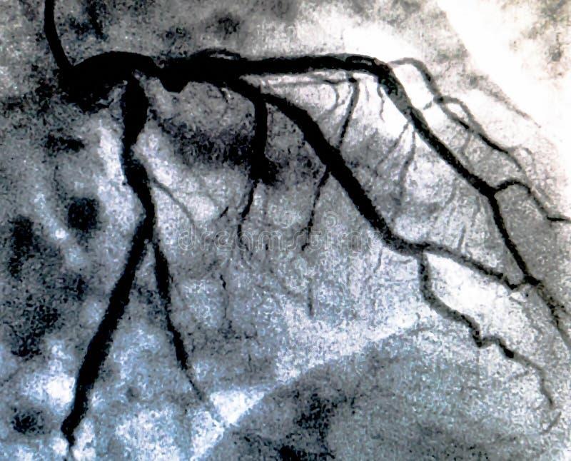 Hjärt- ventriculography Catheterization arkivfoto