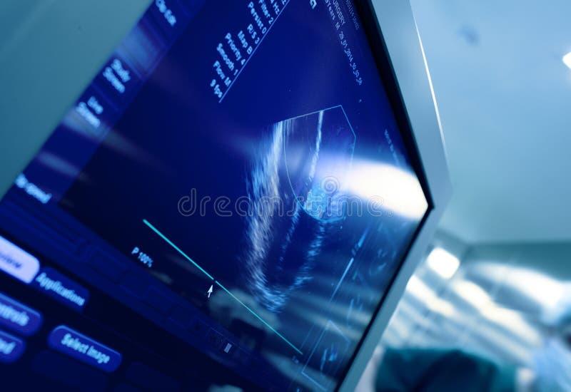 Hjärta på skärmen av ultraljudmaskinen royaltyfri fotografi