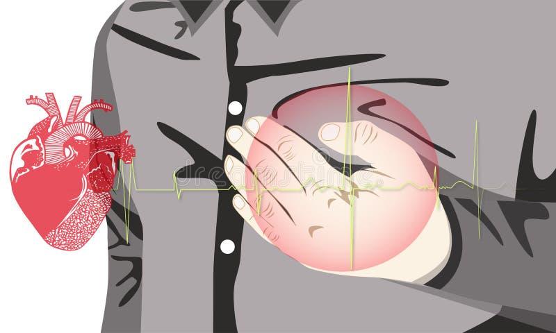 Hjärta smärtar är orsaker av hjärtsjukdomen stock illustrationer