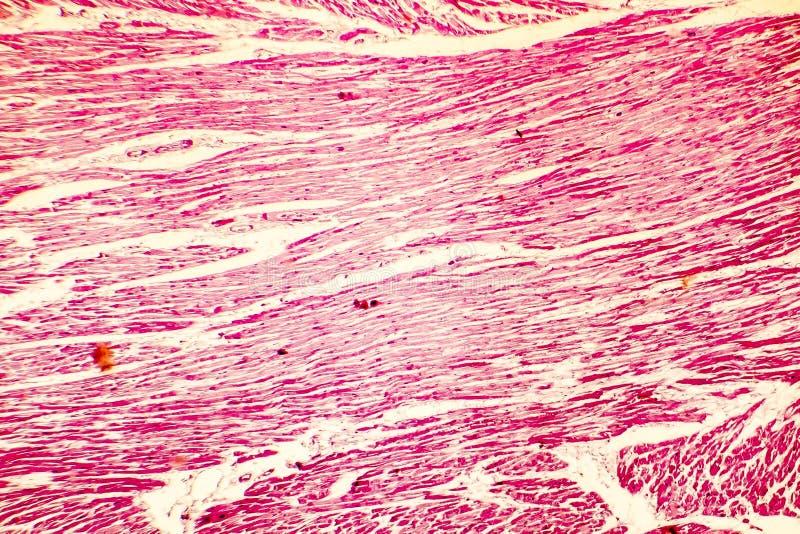 Hjärtahypertrophyphotomicrograph arkivfoton