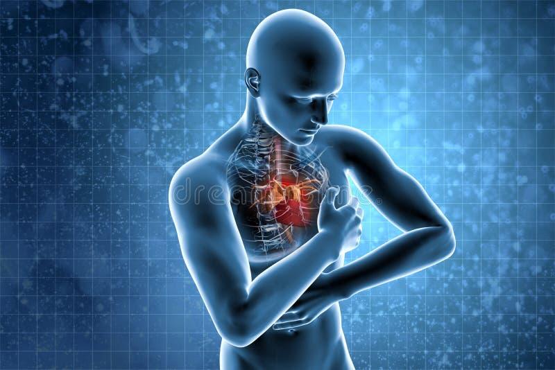 Hjärtinfarktbegrepp stock illustrationer