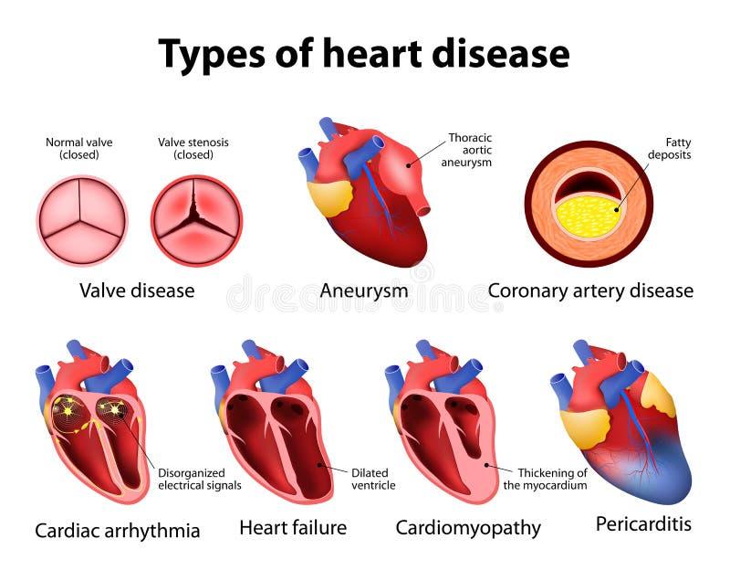 Hjärtsjukdom vektor illustrationer