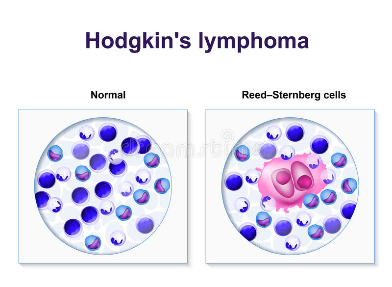 Hodgkin lymphoma ilustracji