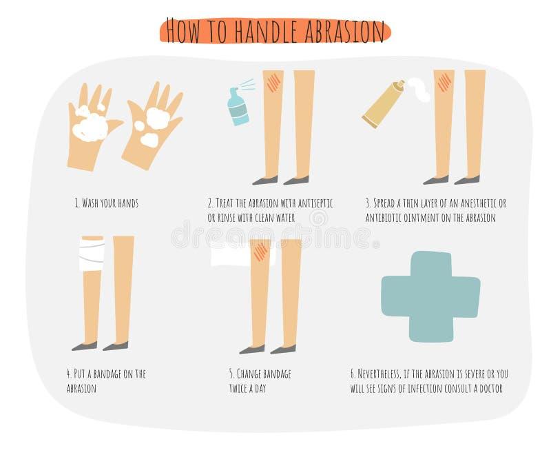 Hoe te om infographic schuringsaffiche te behandelen, illustratie met schuring, antiseptische nevel, zalf, verband vector illustratie