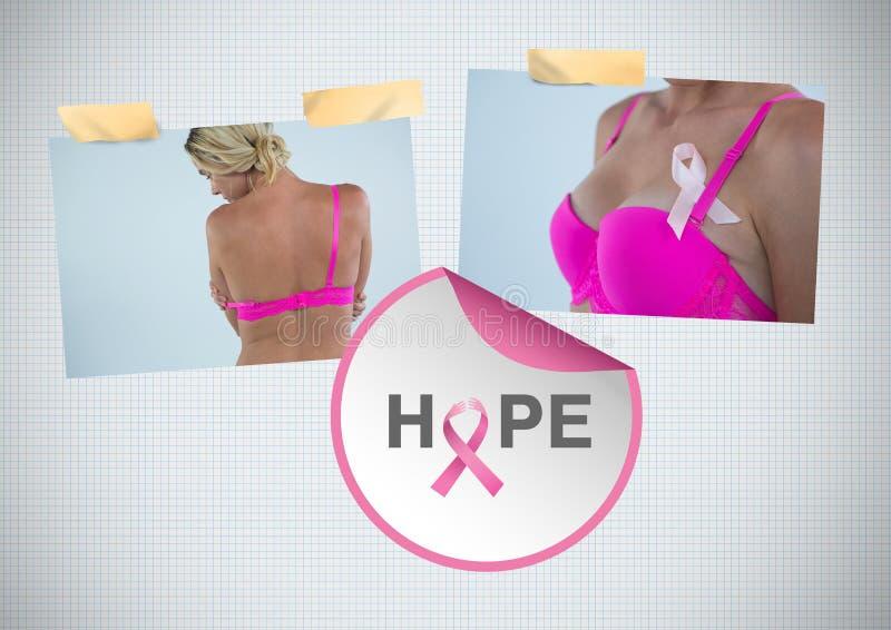 Hoffen Sie Text und Brustkrebs-Bewusstseins-Foto-Collage stockfoto