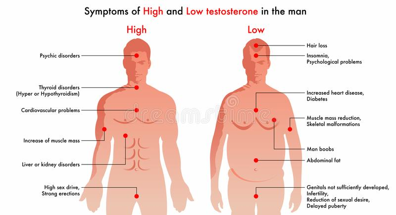 Hoge en lage testosteronsymptomen royalty-vrije illustratie