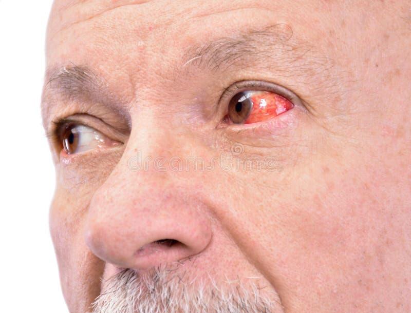 Hogere mens met geïrriteerd rood bloeddoorlopen oog royalty-vrije stock foto's