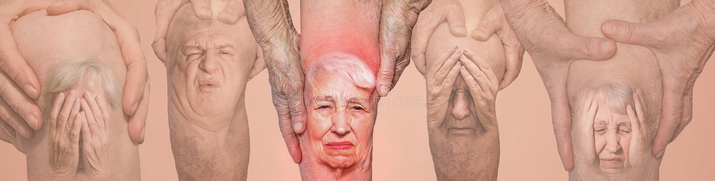 Hogere mensen die de knie met pijn houden collage Concept abstracte pijn en wanhoop stock afbeelding