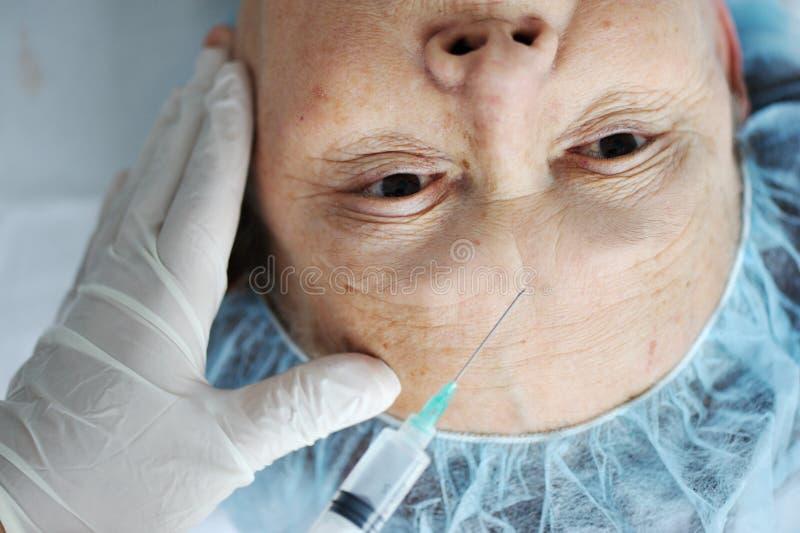 Hogere vrouw die botox injectie krijgt royalty-vrije stock fotografie