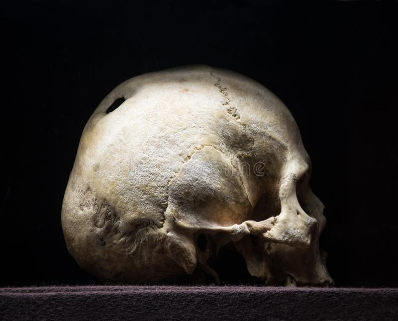 Hole in the skull. Big hollow in braincase isolated on dark backdrop. Gloomy rotten wreck child corpse. Terrible gray die pericranium. Closeup profile detail stock images