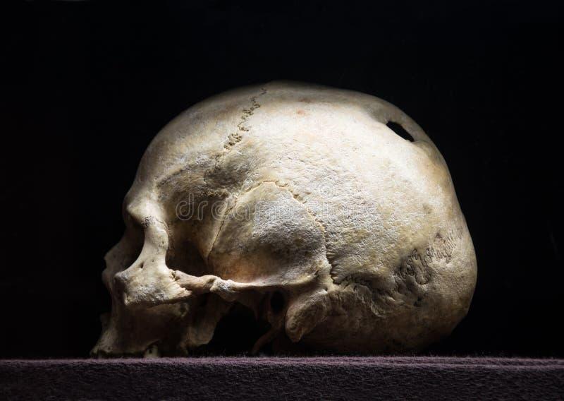 Hole in the skull. Hollow in braincase. gloomy rotten child corpse. terrible pericranium royalty free stock photo