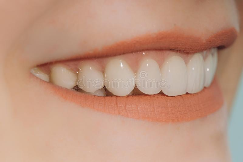 Hollywood smile with porcelain crowns and veneers royalty free stock photography